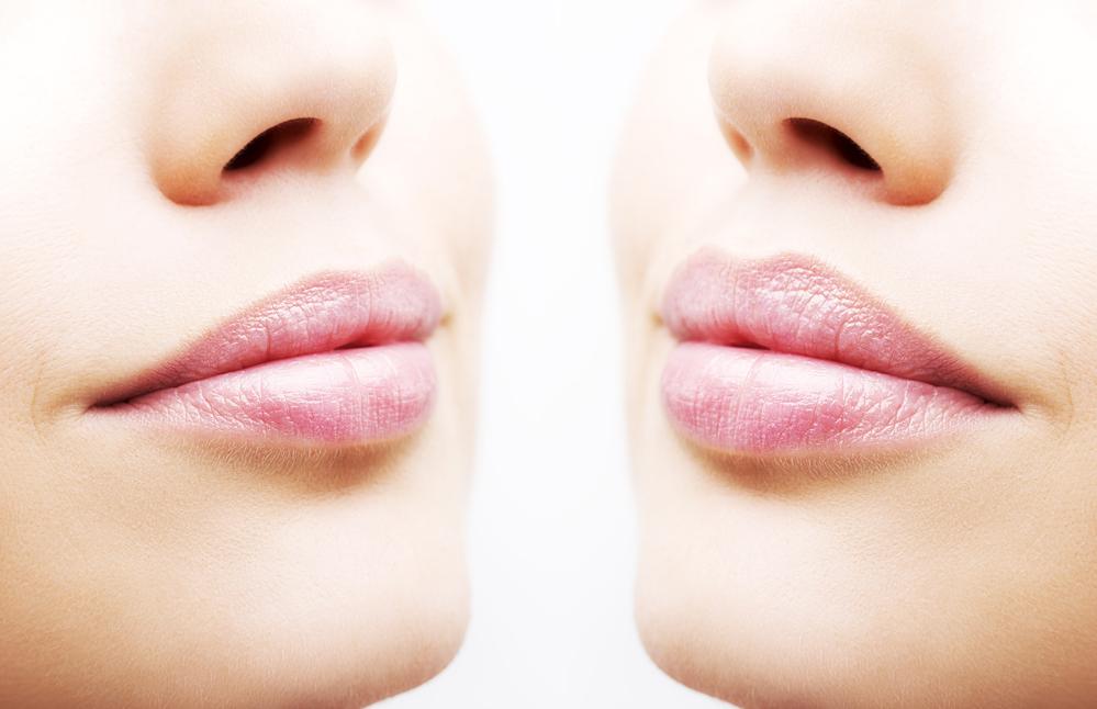 lip flip